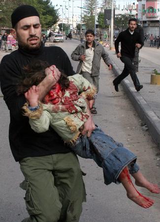 Un padre disperato scappa con la sua bambina ferita alla testa e al corpo dopo l'esplosione di un missile nel campo profughi di Jabaliya.